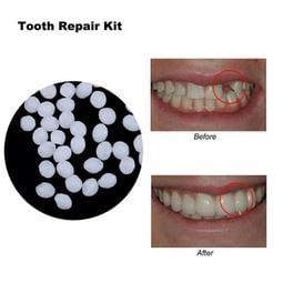 正品!美國進口樹脂材料補牙 DIY補牙 自製假牙  臨時假牙 化妝補牙 自製假牙套 牙齒修補材料