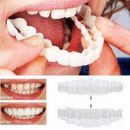 口腔牙齒臨時遮醜仿真牙齒套修復擋住缺牙黑牙黃牙假牙套美白牙齒